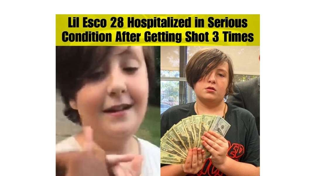 Clown Jew World - Meet 15yo Rapper LIL ESCO 28 shot 3 times and he still breathing!!!
