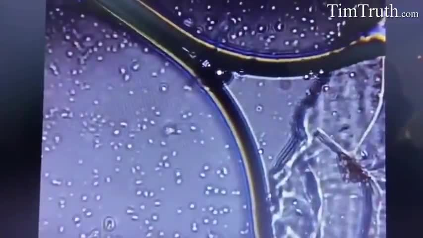 Pfizer Vaccine Zoomed with Microscope - Are Living Cells/Organisms Mixed in?