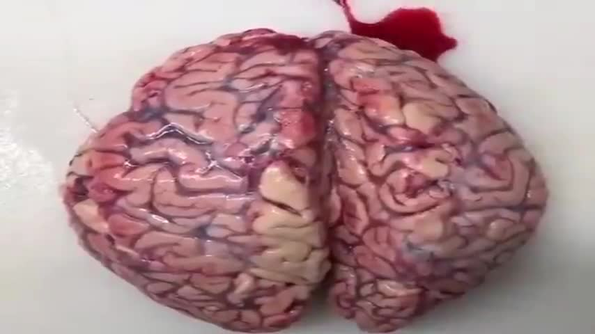 GRAPHIC! Blood Clots Found Inside a Vaccinated Persons Brain - From the University of Almeria Spain